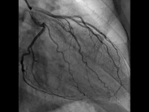 Cardiac Catheterization (Heart video)..amazing what we can do in the medical world..:P
