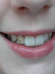 tandsmycke - Google Search  #smile #dental #jewelry