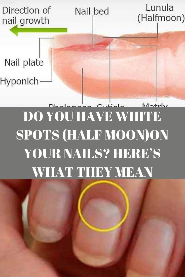 Do You Have White Spots Half Moon On Your Nails Here S What They Mean You Nailed It White Spots On Nails Half Moon