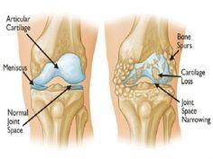 Livre-se rapidamente da dor nas costas, joelhos e articulações com esta simples receita