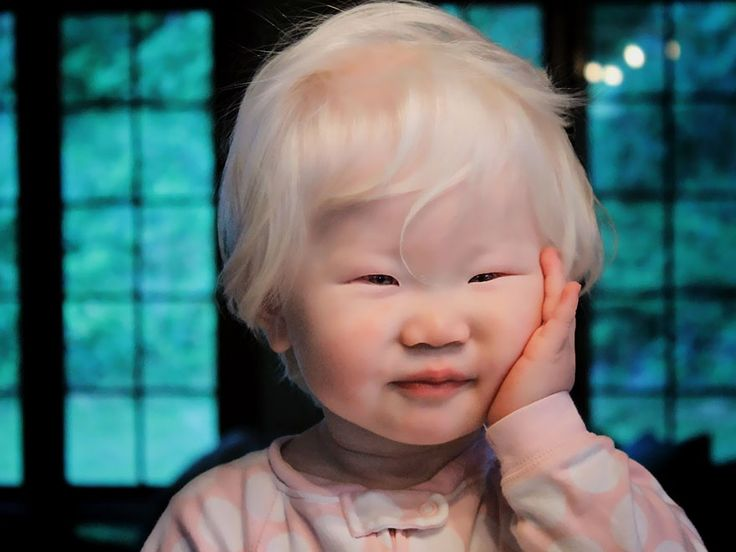 When photographer Yulia Taits posted her hypnotizing photo series that capture the beauty of Albino people, it inspired us to look further and find more people with Albinism.