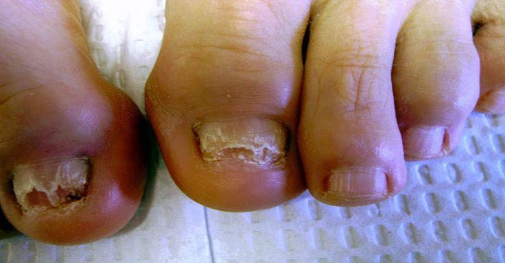 Fantástico! Conheça tratamentos naturais para acabar com fungos nas unhas - # #fungos #TratamentoNatural #unhas
