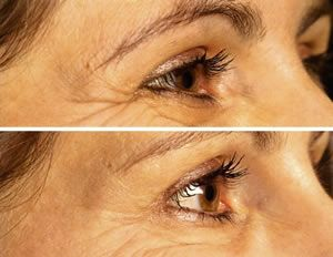 Muscle Relaxing Injection Before After botox before and after botox before after botox www.sculptmd.comresults