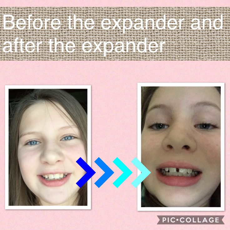 Omg! Look at my mouth and the space between my teeth is so different and that is only 3 weeks with my expander on.