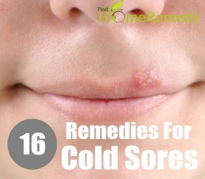 cold sore remedies 17 best images about care remedies on 5721