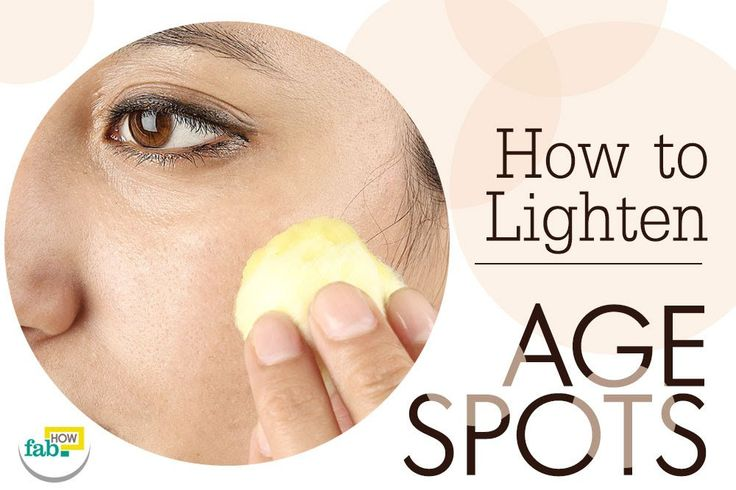Getting Rid Of Age Spots On Face Naturally