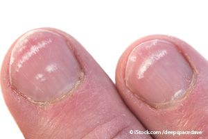 What do horizontal ridges on nails mean?