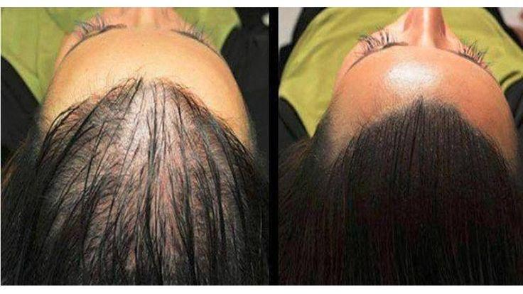 Keď sa niekto sťažuje na vypadávanie vlasov a plešatosť, prvé čo vám napadne je