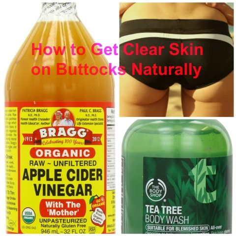 How to Get Clear Skin on Buttocks Naturally. Have the perfect blemish free butt!!
