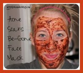 Acne Scar Removal - Acne Scar Removal - The Final Hurdle To Get Your Confidence Back - IPL And Microdermabrasion * Check out the image by visiting the link.
