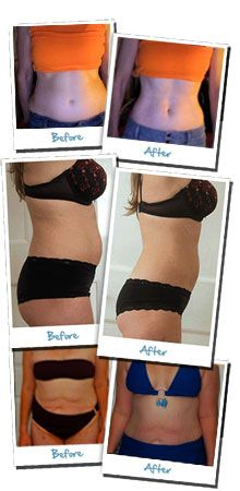 body wrap results: Natural Skin Care, Body Wraps, Weight Loss, Weightloss Burnfat, Tightening Skin, Diet Weightloss, Bestdiet Loseweight