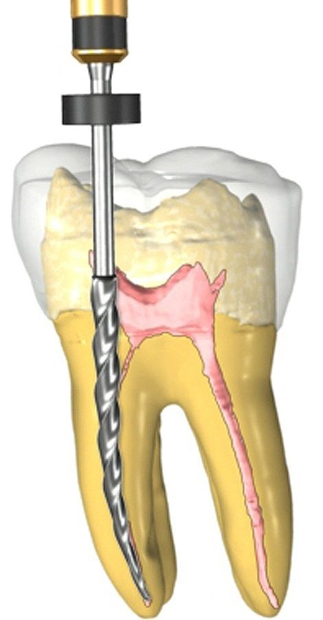A root canal is a procedure to replace infected pulp in a root canal with an inert material, usually pink gutta percha.  #Rootcanal #Endodontics #Endodontist