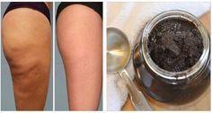 remedio casero, remedios caseros para, semilla de aguacate, venas varicosas,