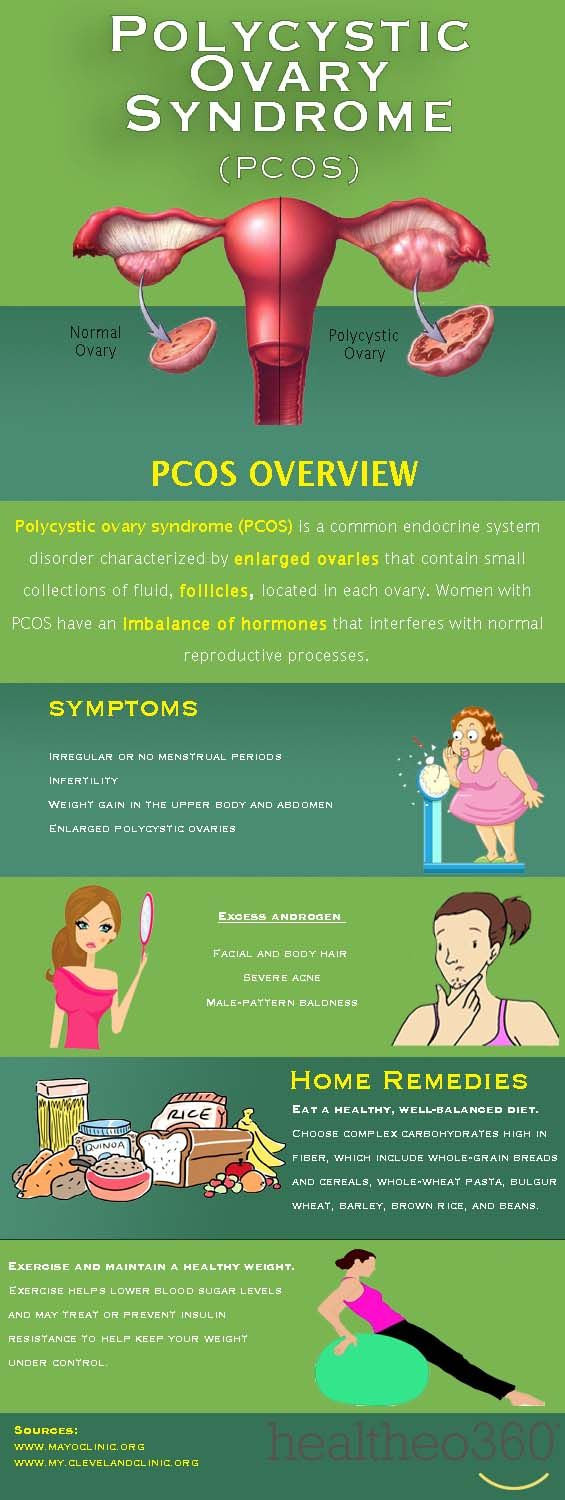 Polycystic Ovary Syndrome (PCOS) Overview  PCOS is a common endocrine system disorder characterized by enlarged ovaries that contain small collections of fluid, follicles, located in each ovary. Women with PCOS have an imbalance of hormones that interferes with normal reproductive processes. Check out this infographic to learn more:  #RealStories #healtheo360 #PCOS #WomensHealth