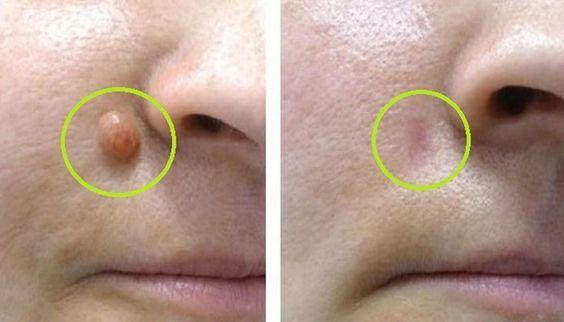 Les verrues sont considérées comme des tumeurs bénignes du tissu conjonctif. Leur taille et leur apparence peuvent varier chez l'homme comme chez la femme.