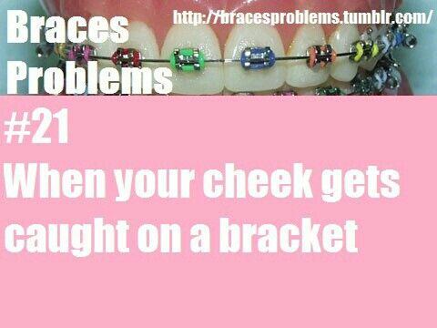 Braces Problems