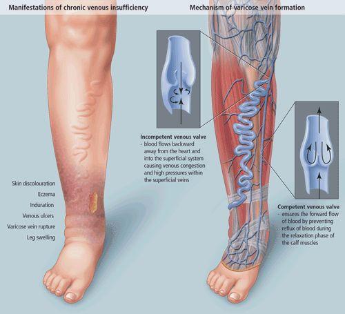 #Venous insufficiency #treatment http://www.usaveinclinics.com/