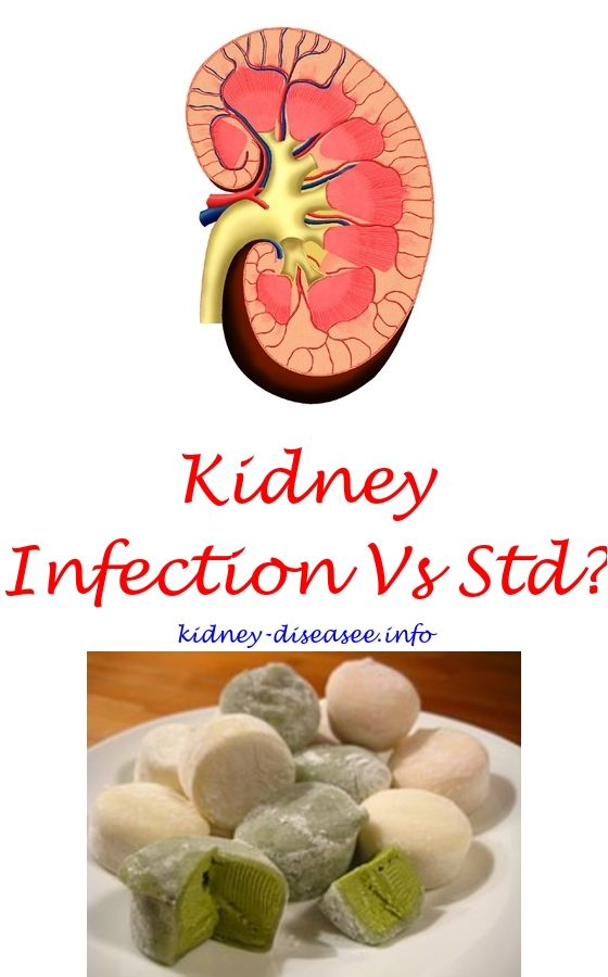 how to make a kidney stone pass