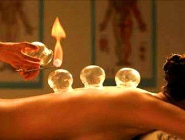 Cupping therapy and benefits of this practice