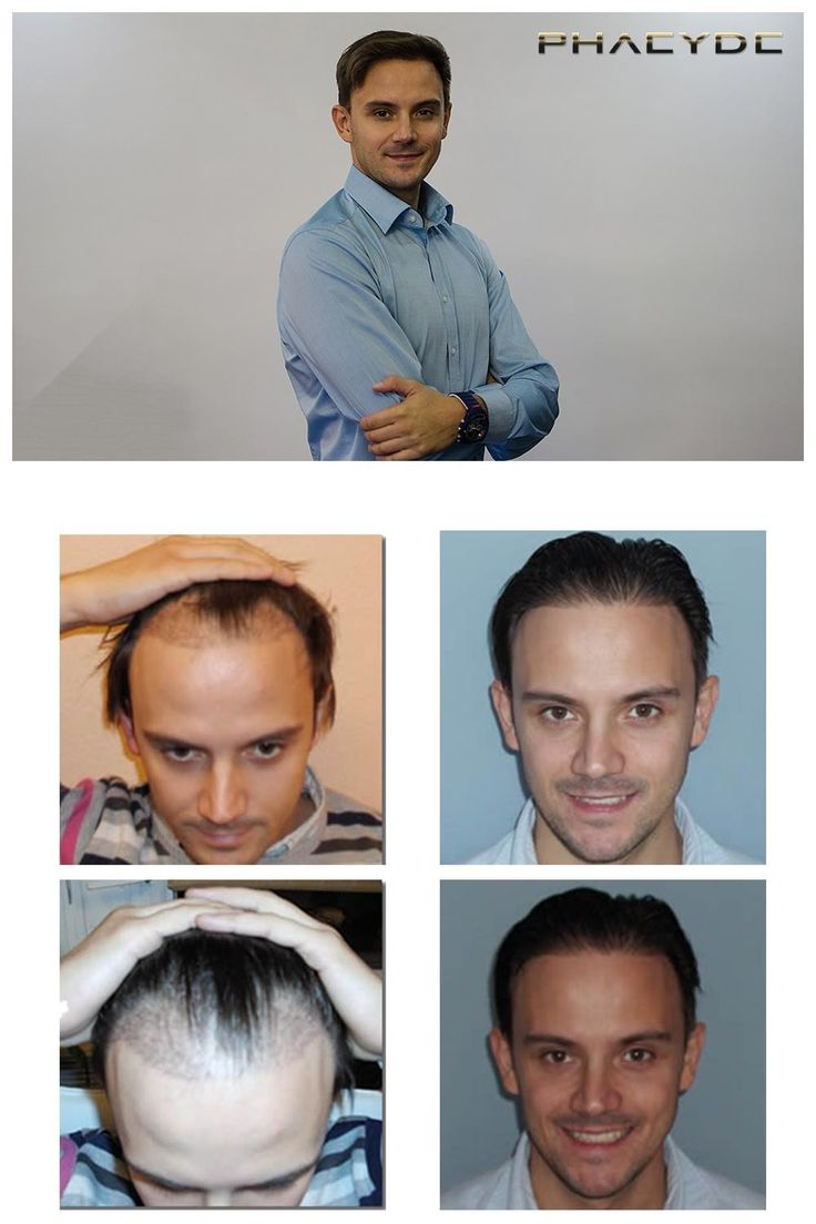 Implantacja włosów włosy 5000 - PHAEYDE Klinika  Miklos miał łysienia problemy w jego świątynie = strefy 1 & 2. Zabieg przeszczepu włosów było wykonane z długich włosów. Tylko dawcy strefy został ucięty, implantacji był między długich włosów. Wykonane przez PHAEYDE kliniki.  http://pl.phaeyde.com/przywrocenie-wlosow