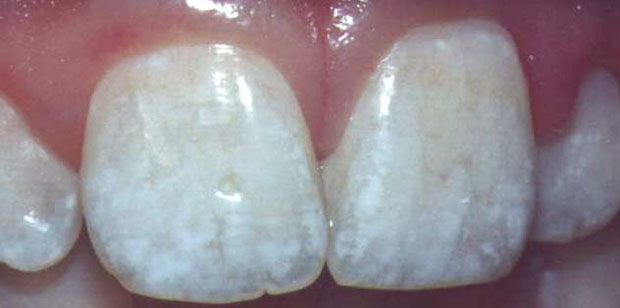 Example of mild dental fluorosis. Source: http://www.fluoridation.com/  EcoDenT Toothpowder is Fluoride-Free