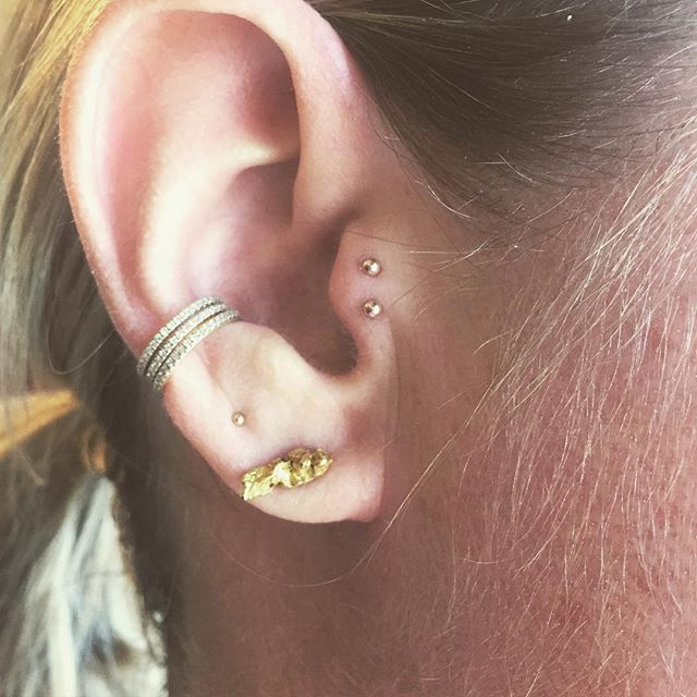 Double Tragus Double Conch