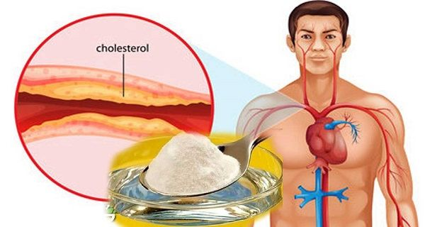 High levels of cholesterol and blood pressure are closely related since both of them occur as a resu...