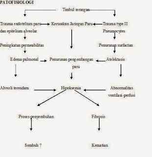 Pathway Acute Respiratory Distress Syndrome (ARDS)