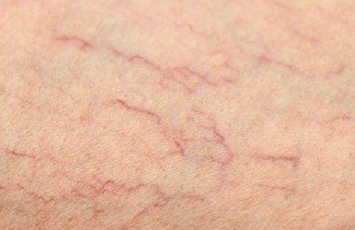 Remèdes contre les varicosités sur les jambes