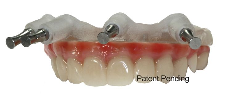 GuidedSMILE ROE Dental Laboratory