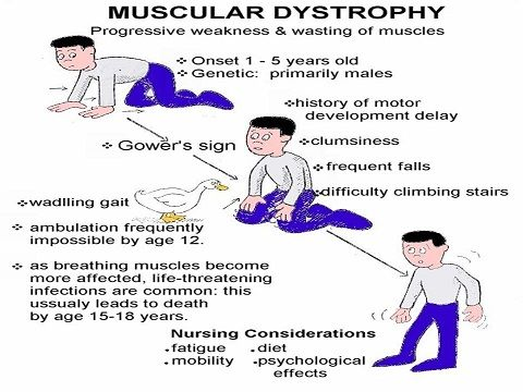 Muscular Dystrophy Symptoms (Duchenne's)