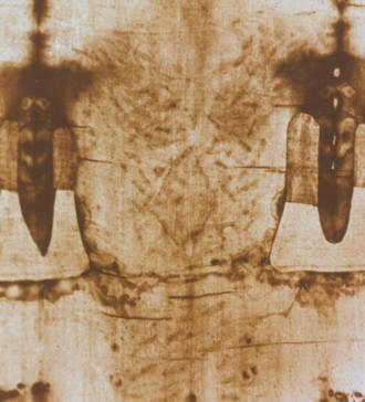 A close up of Jesus' back that is imprinted onto the Shroud of Turin. There is evidence of serious barbaric scourging and torture which emerged through His Resurrection.  A mixture of ultraviolet lights and his blood developed a permanent image of Jesus and his wounds onto the Shroud of Turin.