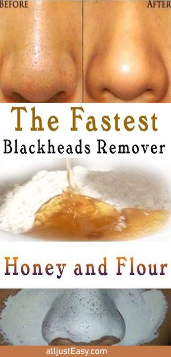 HOW TO GET RID OF BLACKHEADS NATURALLY!