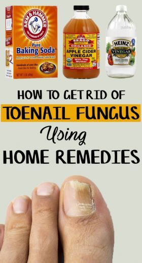 How to Get Rid of Toenail Fungus – 9 Home Remedies Included | Fungus ...