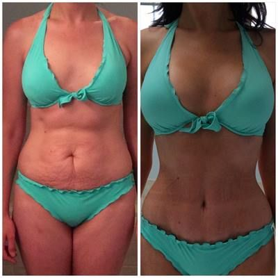"""""""I run. I run a lot. But I knew that no amount of diet and exercise was ever going to get rid of the mommy tummy. [...] I'm so glad I had a Mommy Makeover. I'm very happy with my results."""" #Transformation #Confidence #MommyMakeover"""