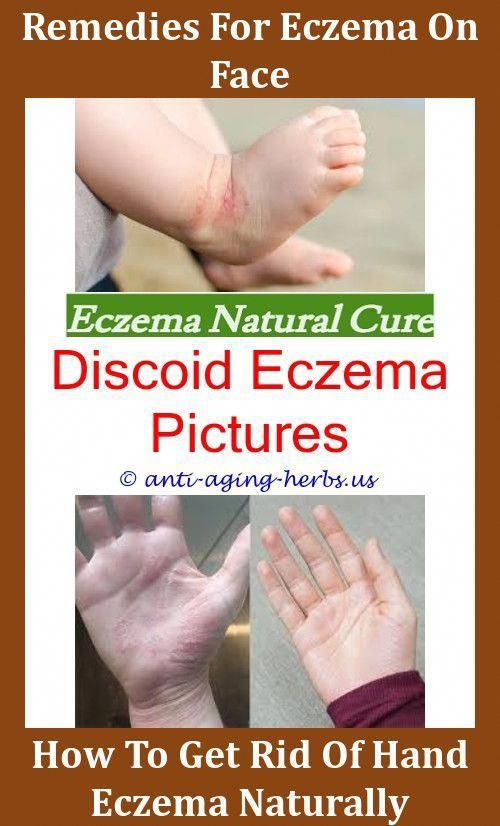 Can Eczema Look Like Hives,eczema treatment african american
