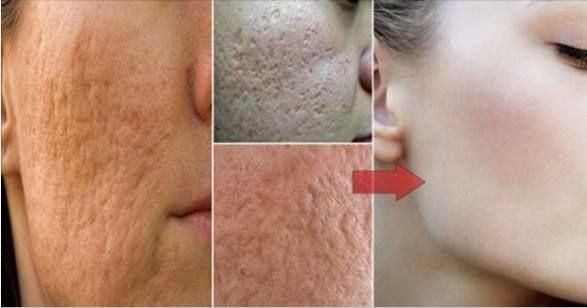 """""""Tratamientos caseros y fáciles para reducir los poros de la piel. ¡Te van a encantar! """""""