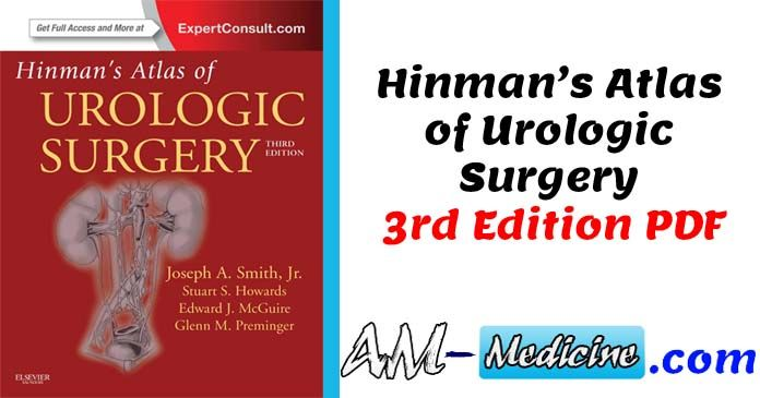 Glenns Urologic Surgery Pdf