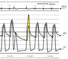 Hypertrophic cardiomyopathy - Wikipedia, the free encyclopedia