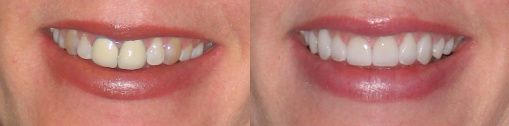 Dr. Ginger Price Cosmetic and General Dentist: Before and After Porcelain Crowns
