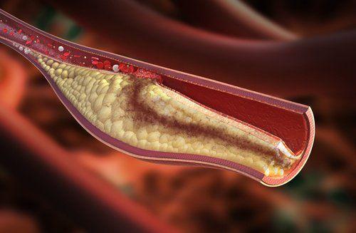 El colesterol alto puede acarrear consecuencias graves en la salud. Para controlarlo de forma oportuna es bueno tener en cuenta cuáles son sus síntomas.