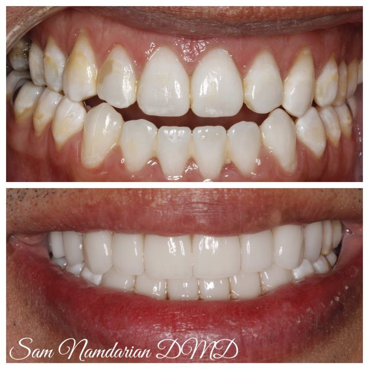 My patient has had braces twice and invisalign once in last 10 years. He was complaining about the open bite between the front teeth and did not want to have  Orthodontic treatment anymore. I decided to close the open bite with upper and lower veneers. After over 10 years he is very satisfied with the result.  #fresnosmilemakeovers #toothwear #abfraction #gumrecession #smile #invisalign #cosmeticdentist