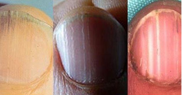 Regardez bien vos ongles et vous remarquerez peut-être de subtiles variations de couleur ou de texture , voici huit des problèmes d'ongles les plus courants