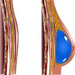 Plastic Surgery Center Bradenton Fl Zip Breast Development Stages