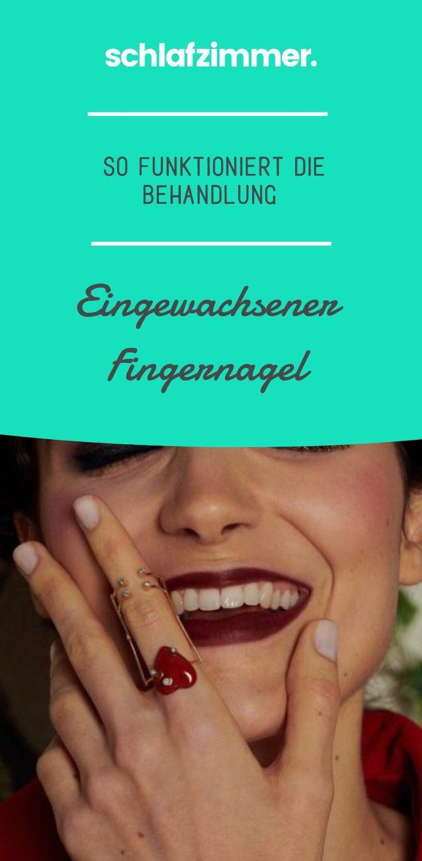 Eingewachsener Fingernagel: Wie die Behandlung fun+#Behandlung #classpintag #col…