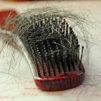 Sudden Hair Loss and What You Can Do