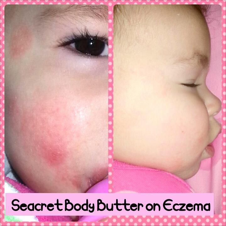 Results on baby eczema with Seacret's body butter. No more harsh steroid creams or medicinal topical treatments. The dead sea is known for its healing properties in aiding skin disorders such as this one and much more. Click here for the product info: https://beta.seacretdirect.com/ashleycuddeford/en/us/item/28/body-butter/