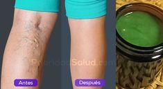 Las varices son esas venas en forma de añitas que aparecen en tus piernas. Puedes notar algunos vasitos dilatados que se forman debajo de tu piel.\r\n\r\n\r\n\r\nLas varices se deben a la mala circulación. Suelen ser de color oscuro y hacen que las piernas se vean poco atractivas. Además de molestas, las varices son dolorosas y te impiden vestirte como te gusta.\r\n\r\n[ad]\r\nEste remedio junto a una buena alimentación y algo de ejercicios eliminará las varices y arañitas de tus piernas…