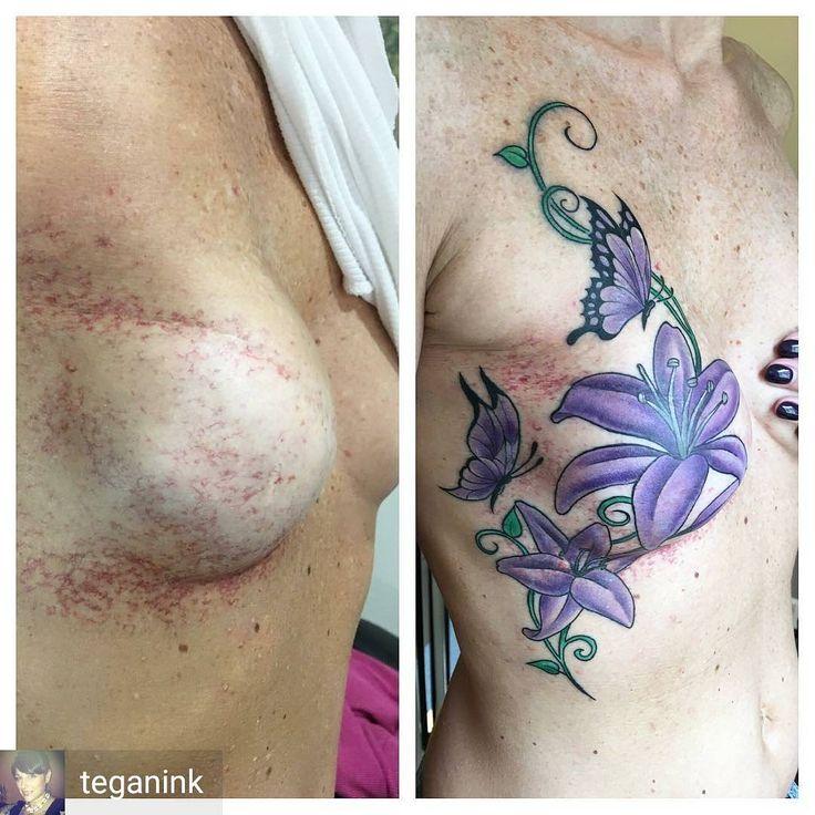 Regrann from @teganink -  #breastcancerink #brustkrebstattoos #brustkrebstattoo #survivortattoo #brustkrebs #scartattoo #breastcancersurvivor #scarcoverup #tattoo #tattoos #scarcoveruptattoo #mastectomy #nippletattoo #mastektomie #mastectomytattoo #breastcancertattoo #masectomy #germantattooers #breastcancer #doublemastectomy #mastectomia #cancersurvivor #breasttattoo #postmastectomy #tattooartist #fuckcancer #tätowierer #cancerdusein #cancerdemama #cancerdeseno