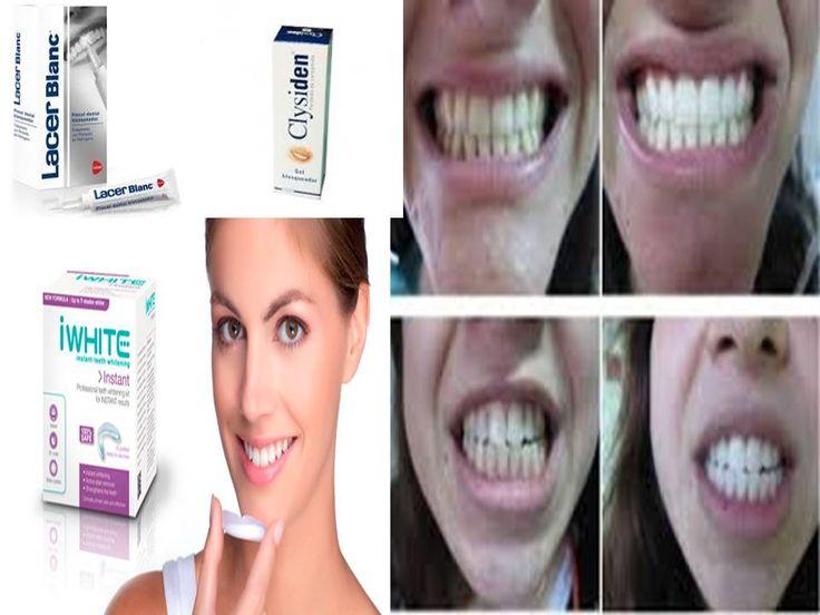#caries y #gingivitis #prevencion #cepillos,#colutorios,#sedas dentales,#pasta dentifrica,#dientes#niños#adultos,#blanquedor,#dentadura postiza,#protesis dentales,#halitosis,#olor,#boca,#irrigador ver blog https://farmaciamoralesblog.wordpress.com/2016/09/22/5395/